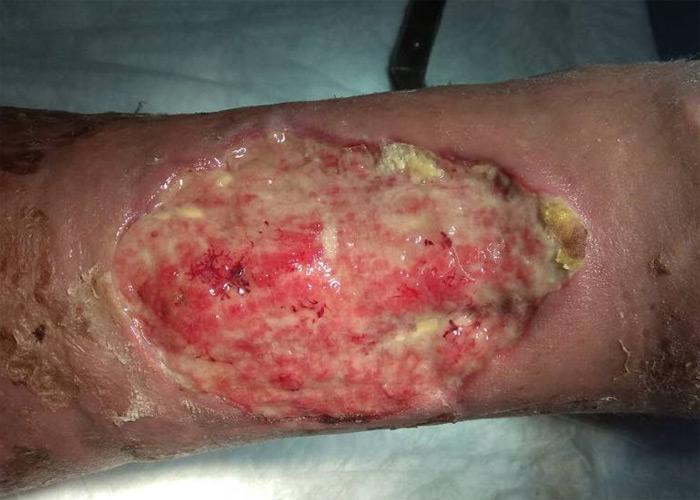 Escarres, ulcères: DCB Cleaderma